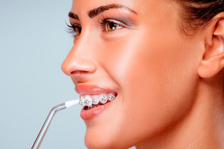 ¿Qué es un irrigador dental y cómo funciona?