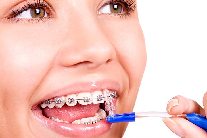 Trucos para limpiar tu ortodoncia